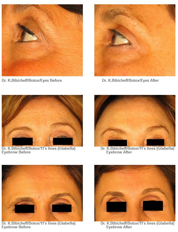 Botox Laser Liposuction Fat Transfer Before Amp After Long Island Ny Vita Ageless
