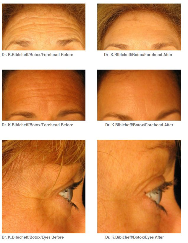 Botox Laser Liposuction Fat Transfer Before Amp After